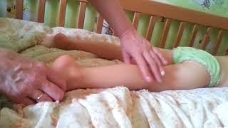 Косолапии у детей. Массаж