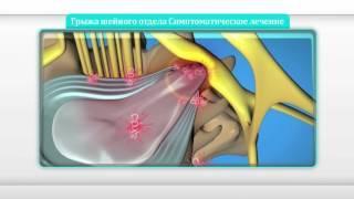 Лечение протрузии шейного отдела | лечение протрузии дисков шейного отдела позвоночника