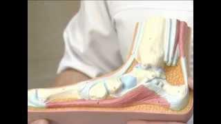 ОРТО-Н: Лечение косолапости. Метод Понсети.