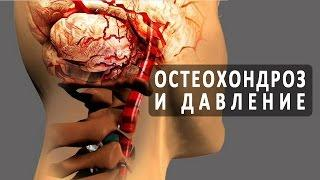 Влияет ли остеохондроз на артериальное давление?