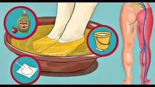 10 минутное Лечение для Уменьшения Боли Седалищного Нерва