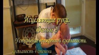 Исцеление руками  Фильм 2  Лечение косолапости